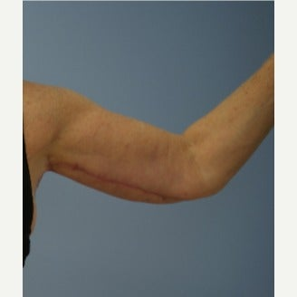 55-64 year old woman treated with Arm Lift after 1599086