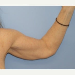 55-64 year old woman treated with Arm Lift before 1599086