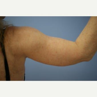 55-64 year old woman treated with Arm Lift 1599086