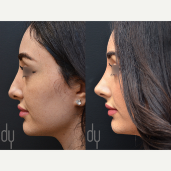 Revision Rhinoplasty before 3116243