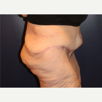 55-64 year old woman treated with Body Lift after 3037284