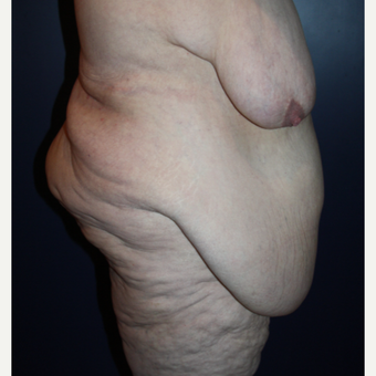 55-64 year old woman treated with Body Lift before 3037284