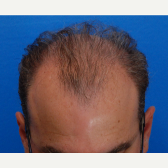 45-54 year old man treated with Hair Transplant before 3417087