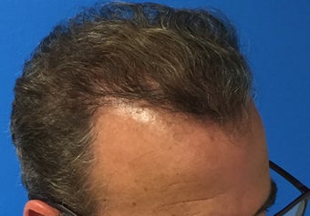 45-54 year old man treated with Hair Transplant 3417087