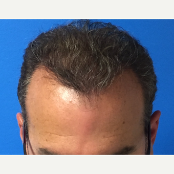 45-54 year old man treated with Hair Transplant after 3417087
