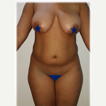 25-34 year old woman treated with Liposculpture before 2877598