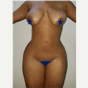 25-34 year old woman treated with Liposculpture after 2877598