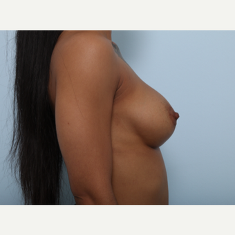 Breast Augmentation after 3459655