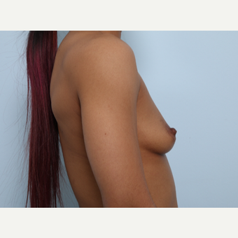 Breast Augmentation before 3459655