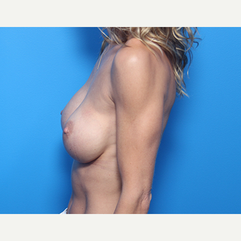 41 year old woman, Breast Augmentation with Allergan Inspira implants after 3049945