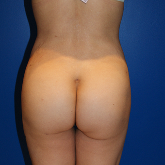 35-44 year old woman treated with Brazilian Butt Lift after 3125717