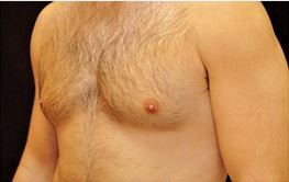 28 Year Old Male treated for Enlarged breasts. 1 Coolsculpting treatment.  after 1016482