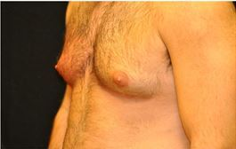 28 Year Old Male treated for Enlarged breasts. 1 Coolsculpting treatment.  before 1016482