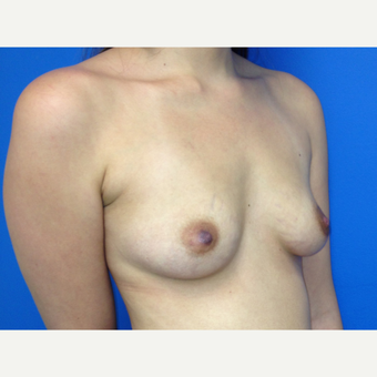 Breast Augmentation before 3743762