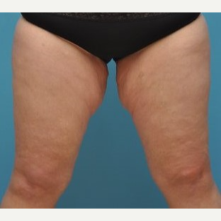 25-34 year old woman treated with Thigh Lift before 3076214