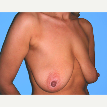 Breast Lift with Implants before 3748830