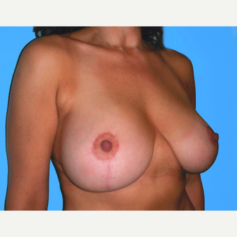 Breast Lift with Implants after 3748830