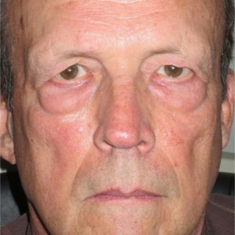 55-64 year old man treated with Eyelid Surgery before 1685260