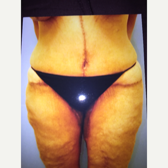 45-54 year old woman treated with Thigh Lift after 3333515