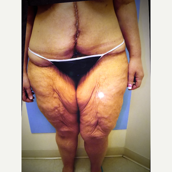 45-54 year old woman treated with Thigh Lift before 3333515