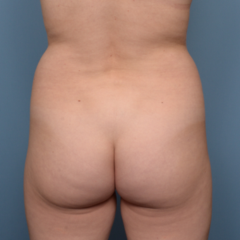 35-44 year old woman treated with Liposuction before 3011765