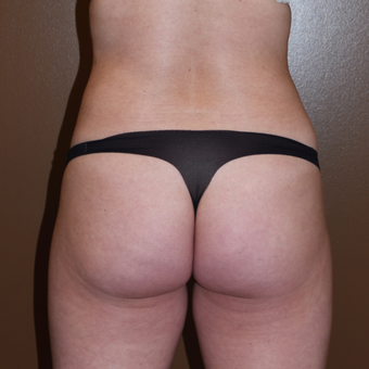 35-44 year old woman treated with Liposuction after 3011765