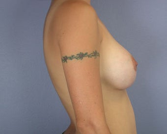 Breast Augmentation after 281403
