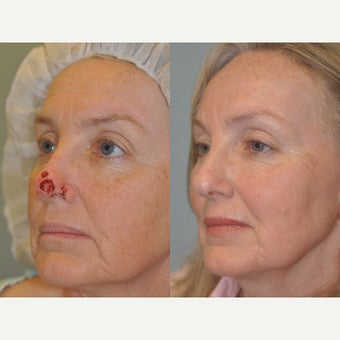 Nasal Reconstruction with a forehead flap after 2042436