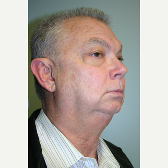 63 year old man treated with Facelift before 3442637