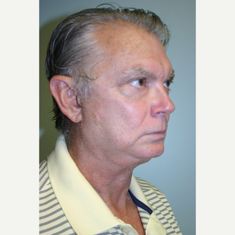 63 year old man treated with Facelift after 3442637