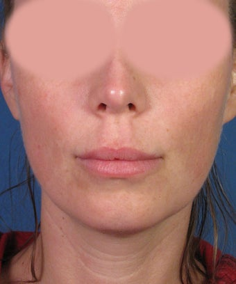 Upper Lip Lift with Subnasale Incision to Shorten the Upper Lip before 1155086