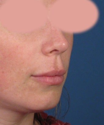 Upper Lip Lift with Subnasale Incision to Shorten the Upper Lip 1155086