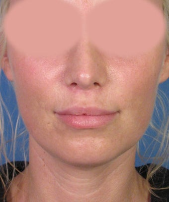 Upper Lip Lift with Subnasale Incision to Shorten the Upper Lip after 1155086