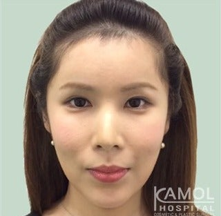 MTF Facial Feminization Surgery after 2704818