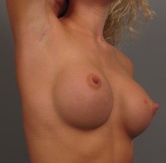 25-34 year old woman treated with Bilateral Endo-Axillary Breast Augmentation 3344416
