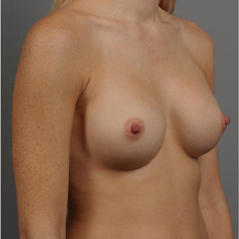 25-34 year old woman treated with Bilateral Endo-Axillary Breast Augmentation after 3344416