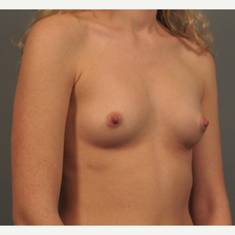 25-34 year old woman treated with Bilateral Endo-Axillary Breast Augmentation before 3344416