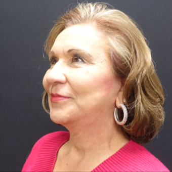 65-74 year old woman treated with Fat Transfer and Facelift after 3244868