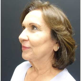 65-74 year old woman treated with Fat Transfer and Facelift before 3244868