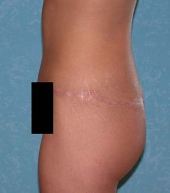 Circumferential Body Lift with Buttock Augmentation 857126
