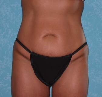 Circumferential Body Lift with Buttock Augmentation before 857126
