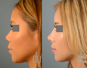 Asian Rhinoplasty with Rib Cartilage Harvest and Diced Cartilage Fascia (DCF)