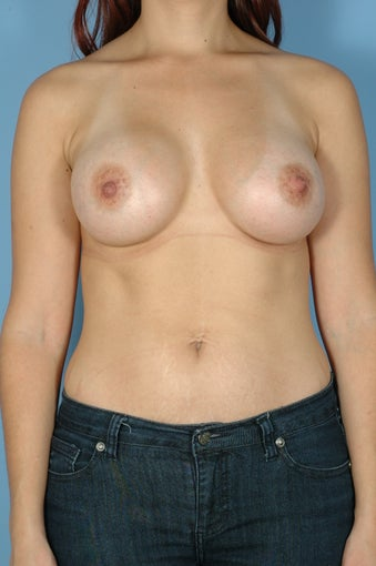 Subpectoral Breast Augmentation/Implants w/Mentor High Profile Silicone Gel after 481220