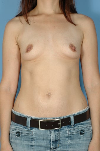 Subpectoral Breast Augmentation/Implants w/Mentor High Profile Silicone Gel before 481220