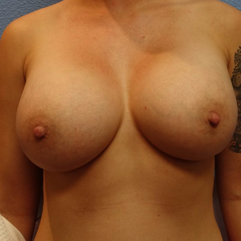 25-34 year old woman treated with Breast Augmentation after 3320490