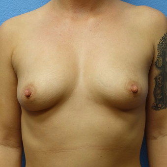 25-34 year old woman treated with Breast Augmentation before 3320490