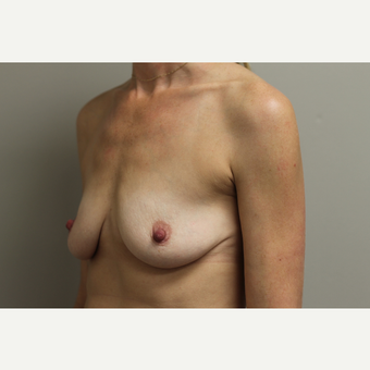 35-44 year old woman treated with Breast Augmentation before 3652004