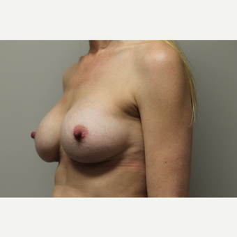 35-44 year old woman treated with Breast Augmentation after 3652004