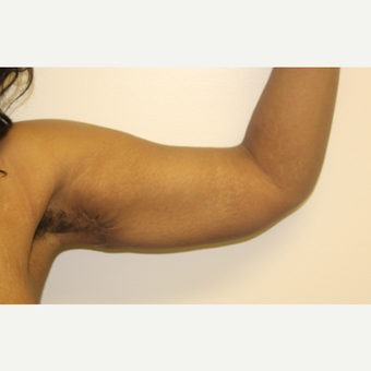 35-44 year old woman treated with Liposuction and short scar brachioplasty after 3332685