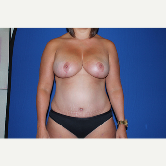 25-34 year old woman treated with Mommy Makeover after 3769718